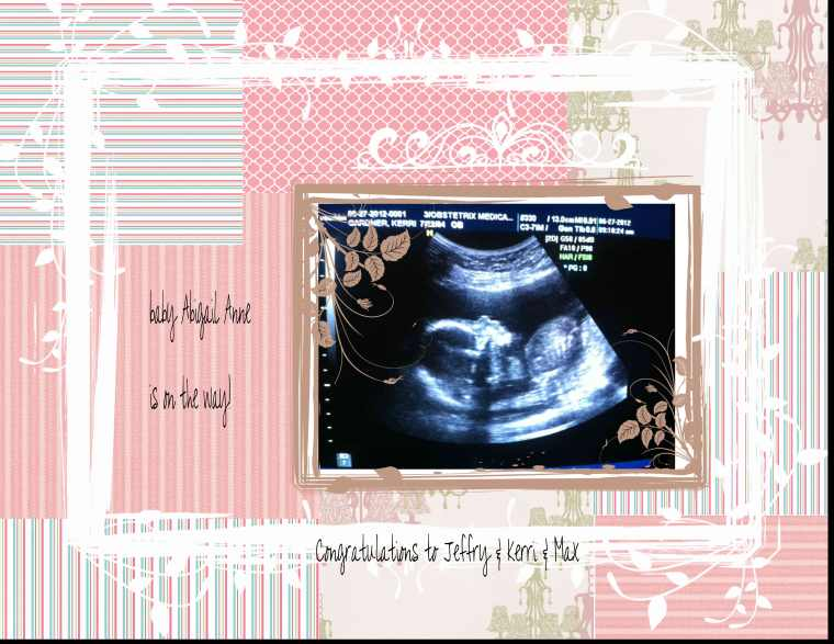 2012 06 27 Abigail Ultrasound